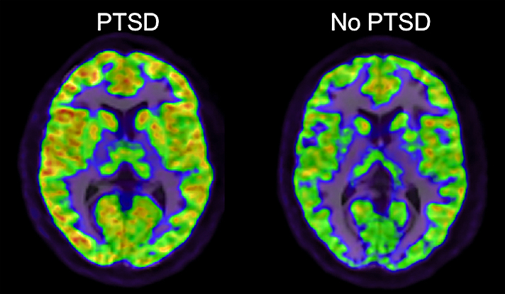 Computerized Tomography (CT) Scan of a brain with and without PTSD